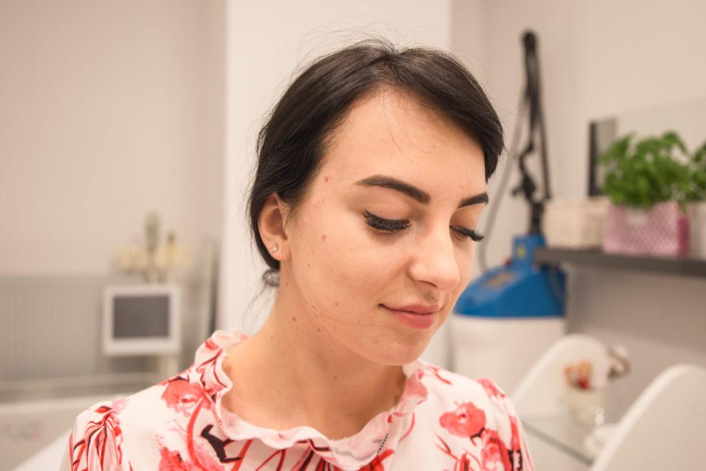 mezoterapia igłowa efekty